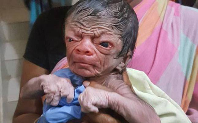 Can You Imagine of A New-Born Boy Who looks like an 80 Years old? Well then meet This Boy from Bangladesh