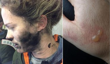 Headphone explosion: Woman's face and hair burnt on plane